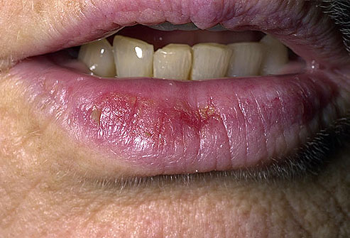 skin cancer on lips pics Actinic Cheilitis
