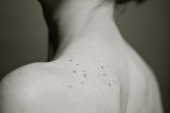 Mole on skin image