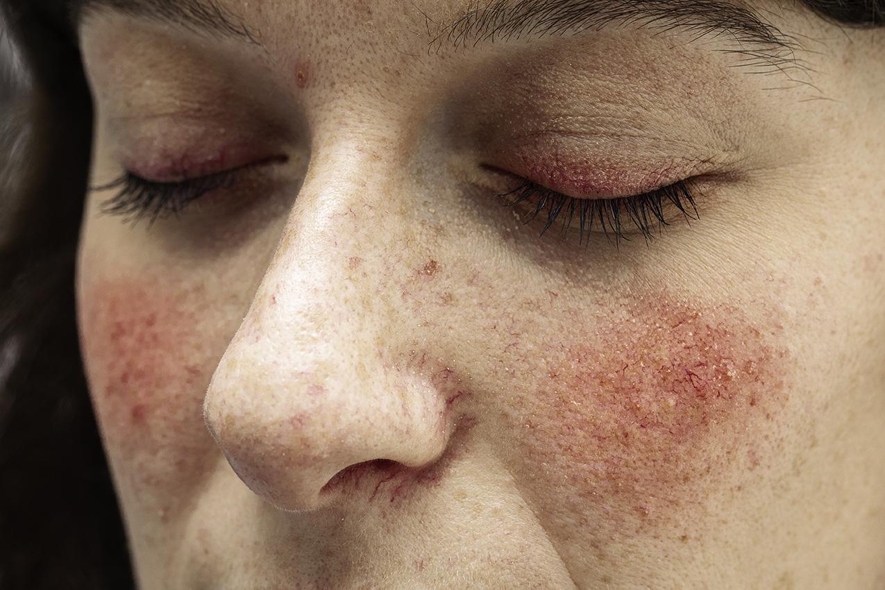 Rosacea - Facial Redness and Flushing - Diamond Skincare